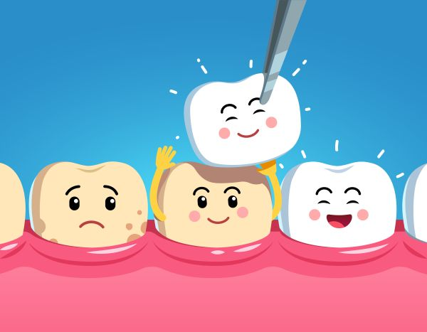 Reasons To Get A Dental Crown Restoration