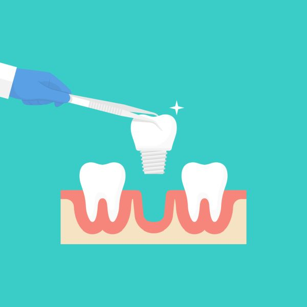 How Mini Dental Implants And Dental Implants Are Different